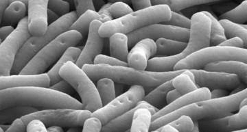 I batteri Lactobacillus, per gli amici Lacto